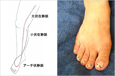 甲 足 むくみ 片足 の 足の甲のむくみは病気のサイン!生理的むくみと病的むくみ