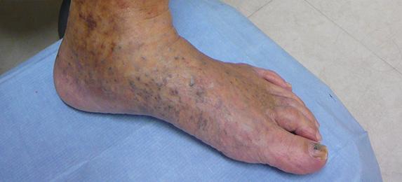 下肢 静脈 瘤 画像